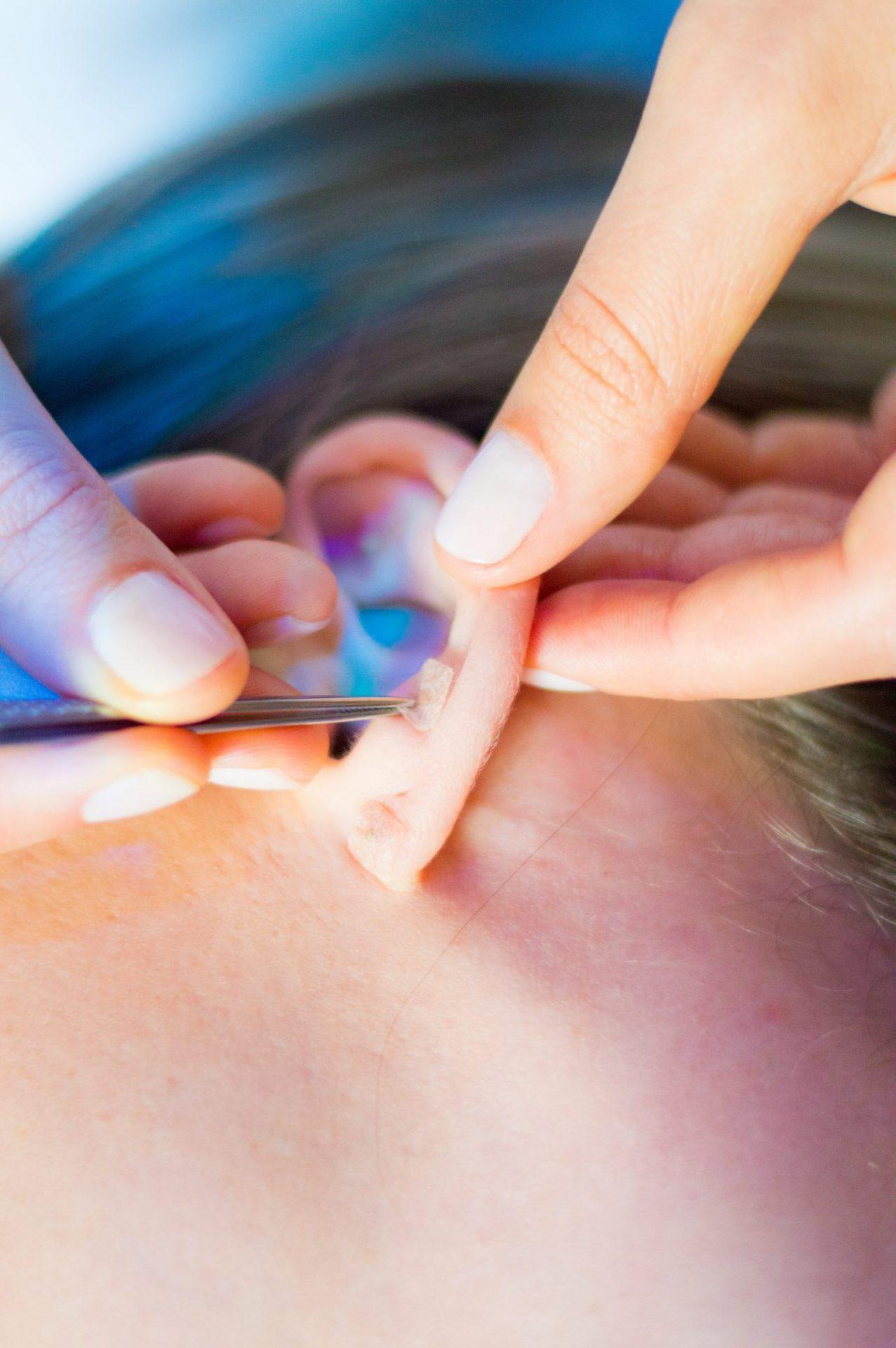 Reflexoterapia e auriculoterapia